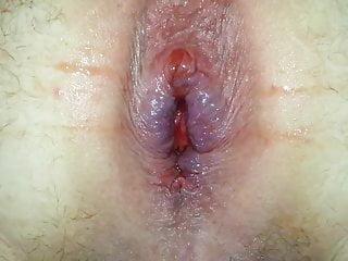 Gape anal stretching...