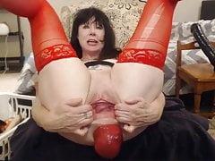 big anal prolapsefree full porn