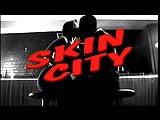 Skin City