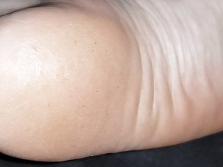 Wrinkled foot soles arches